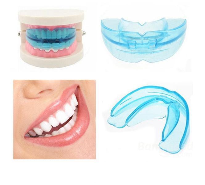 Dụng cụ niềng răng tại nhà review 0ccdb5fcd5105e0594b728cec7b56aa4