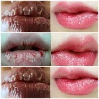 [100% Chính Hãng] Ủ Môi Collagen Ngân Bình Hết Khô Môi, Nứt Nẻ, Môi Hồng Mềm Mại, Làm Hồng Nhũ Hoa thumbnail