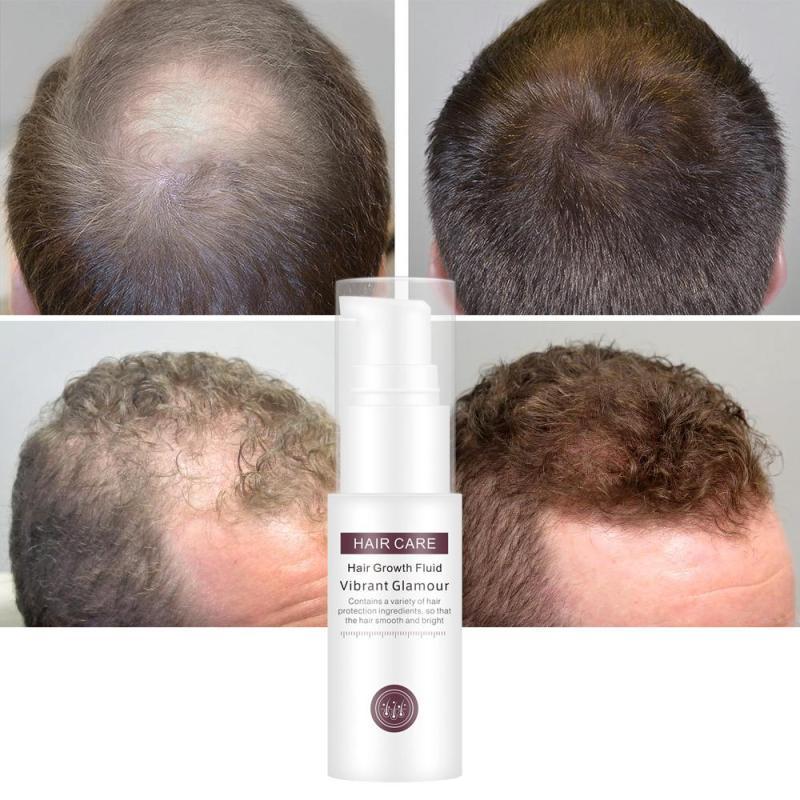 mọc tóc Tinh chất tăng trưởng tóc ,Hair Grower, Dầu xả tóc ,Tinh chất trị rụng tóc cho nam và nữ ,30ML