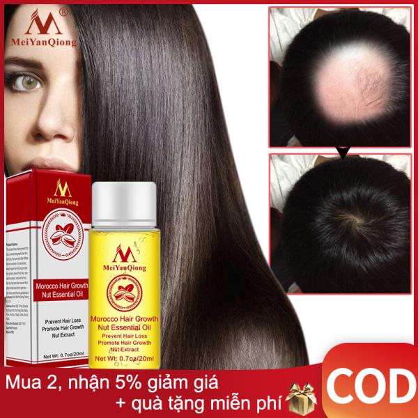 MeiYanQiong Tinh chất tăng trưởng tóc nhanh chóng Sản phẩm giảm tóc tinh dầu lỏng điều trị ngăn ngừa rụng tóc sản phẩm chăm sóc tóc 20ml cao cấp