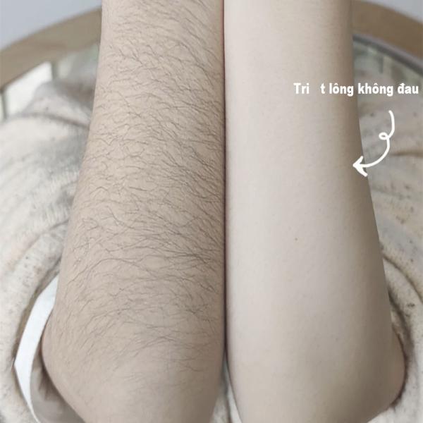 Hair Removal Kem tẩy lông kem tẩy lông triệt lông nách, chân,body, tay, bikini, vùng kín, an toàn và không gây kích ứng da giá rẻ