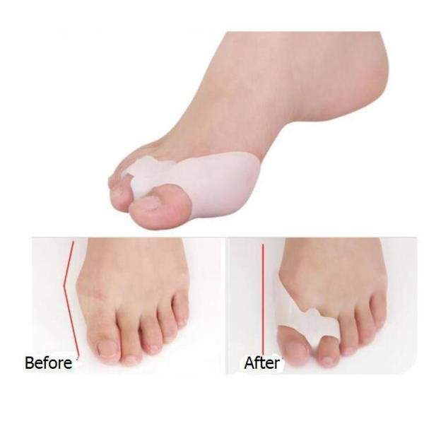 Bộ 2 miếng bảo vệ đinh hình ngón chân cái , tách ngón chân Silicon ( Nhỏ)