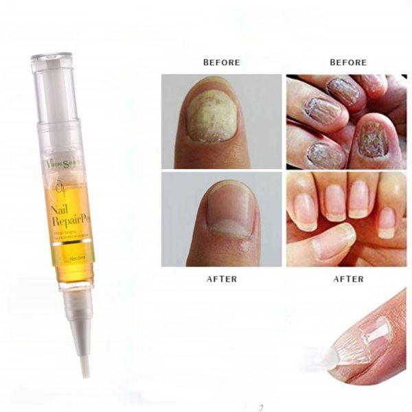 Fungal Nail Repair Pen Effective Anti Fungal Nail Infection Biological Repair Restores Healthy Toe Nail Care giá rẻ