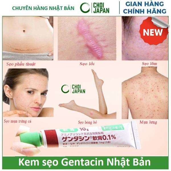 Tuýt Kem xóa sẹo gentafmicin Nhật Bản 10g ( xóa sẹo lồi, lõm, thâm ) nhập khẩu