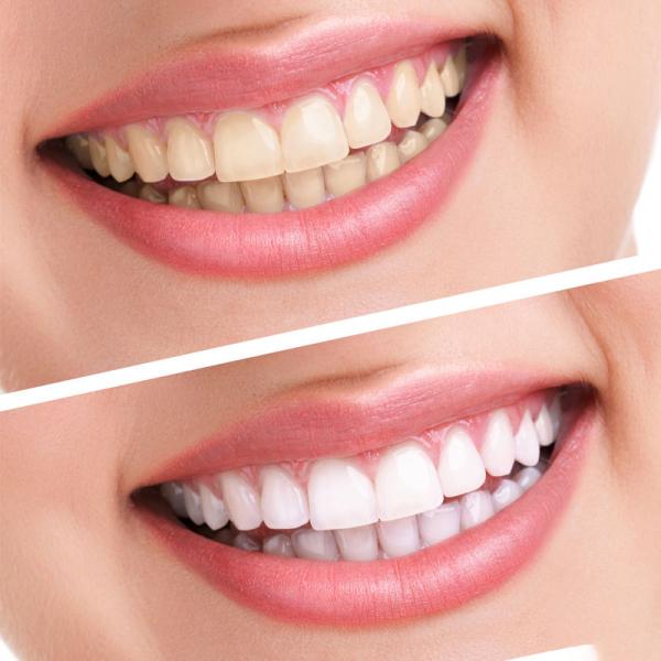 Đánh răng trắng tự nhiên không ê buốt, loại bỏ mảng bám và cao răng