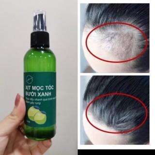 combo 2 chai xịt mọc tóc bưởi xanh, kích thích mọc tóc, giảm rụng tóc hiệu quả sau 2 tuần sử dụng thumbnail