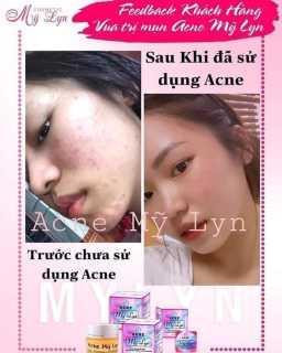 ACNE MỸ LYN thumbnail