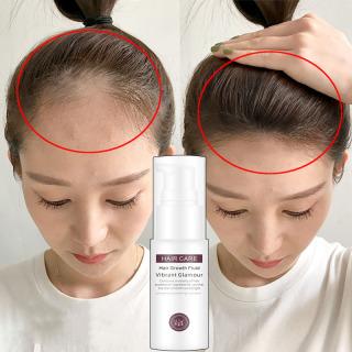 Tinh dầu kích mọc tóc nhanh , ngăn ngừa rụng tóc, chai tinh dầu,tinh chất giúp tóc mọc nhanh , chống rụng tóc Tinh chất tăng trưởng tóc nhanh ,Hair Grower, Dầu xả tóc ,Tinh chất ngăn ngừa rụng tóc cho nam và nữ ,30ML thumbnail