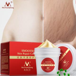 MeiYanQiong Kem làm mịn da cho vết rạn da loại bỏ vết sẹo cho bà bầu Sửa chữa da Kem toàn thân loại bỏ sẹo chăm sóc sau sinh thumbnail