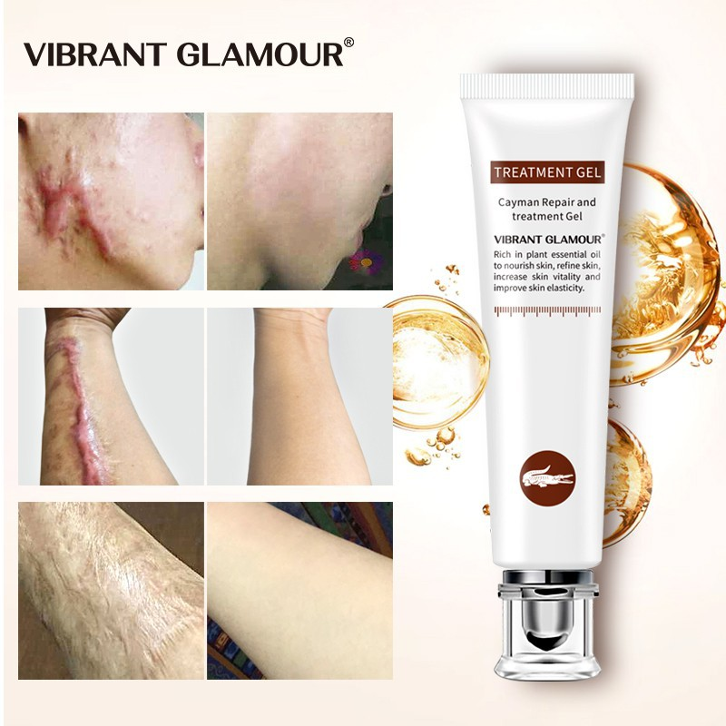 VIBRANT GLAMOUR Serum dưỡng phục hồi cải thiện vết thâm sẹo lồi sẹo lõm thu nhỏ lỗ chân lông làm sáng mịn da chăm sóc da nhạy cảm khối lượng 20g