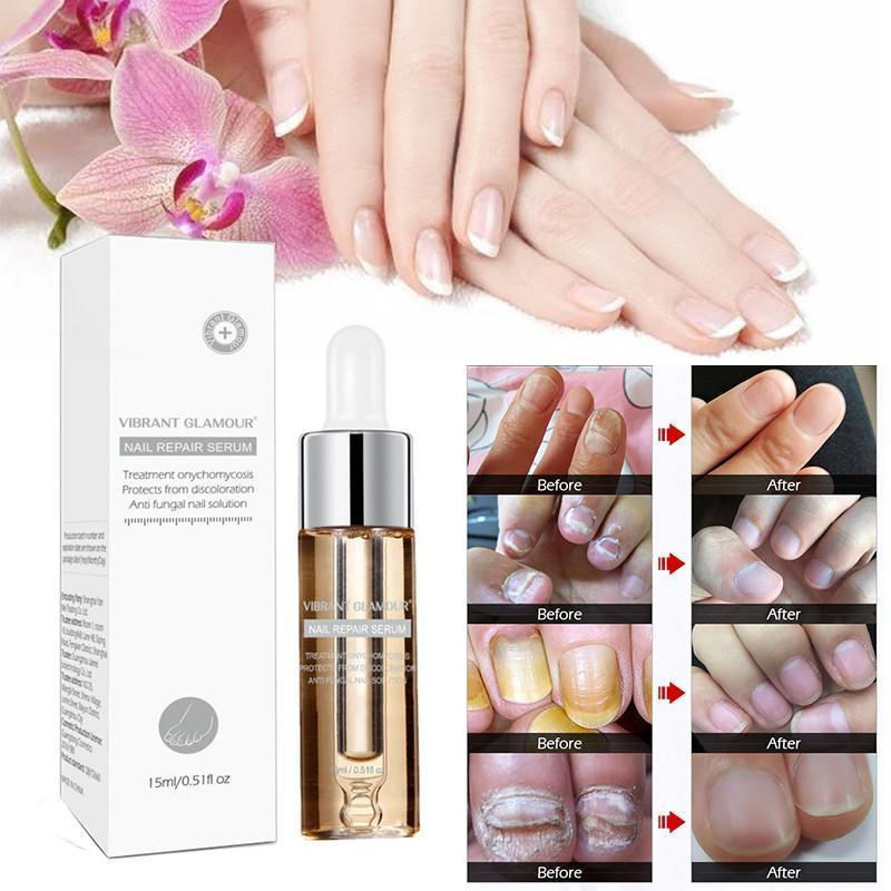 Nail Fungus Treatment Herb Nails Repair Cream Anti Infection Nail Foot Care Onychomycosis Removal Essence Nail Protector Serum