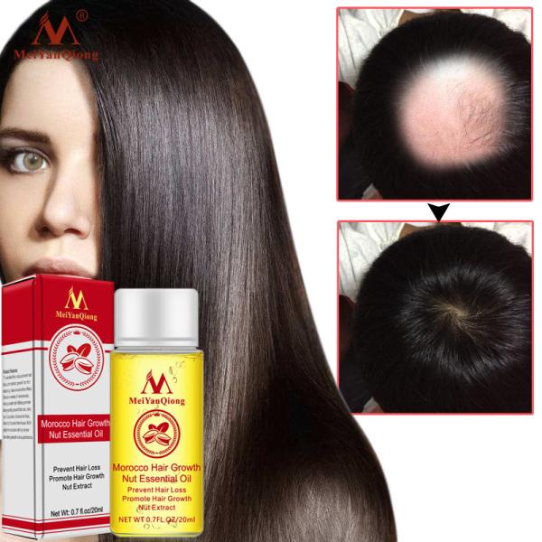 MeiYanQiong Tinh chất tăng trưởng tóc nhanh chóng Sản phẩm giảm tóc tinh dầu lỏng điều trị ngăn ngừa rụng tóc sản phẩm chăm sóc tóc 20ml