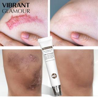 VIBRANT GLAMOUR Serum dưỡng phục hồi cải thiện vết thâm, sẹo lồi, sẹo lõm, thu nhỏ lỗ chân lông, làm sáng mịn da, chăm sóc da nhạy cảm, khối lượng 20g thumbnail