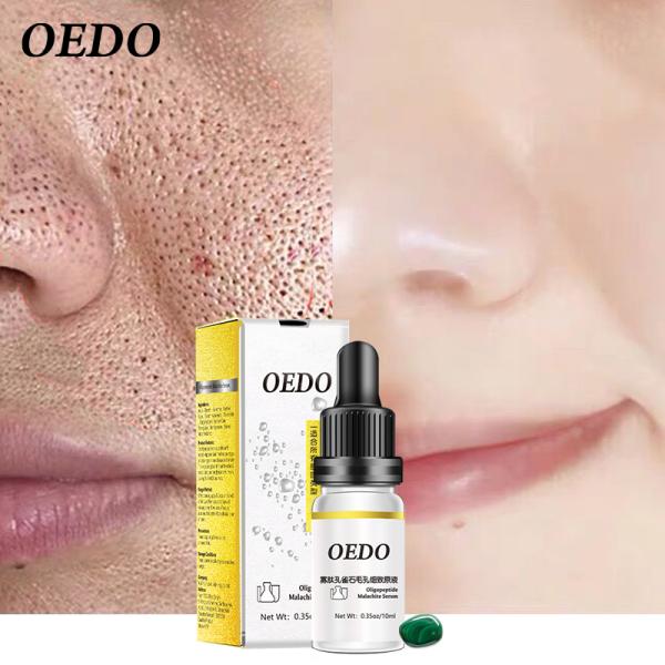 OEDO Tinh chất chăm sóc da 10ml, chống nhăn chống lão hóa, thu nhỏ lỗ chân lông, cải thiện làn da trắng sáng Oligopeptide Malachite Serum nhập khẩu