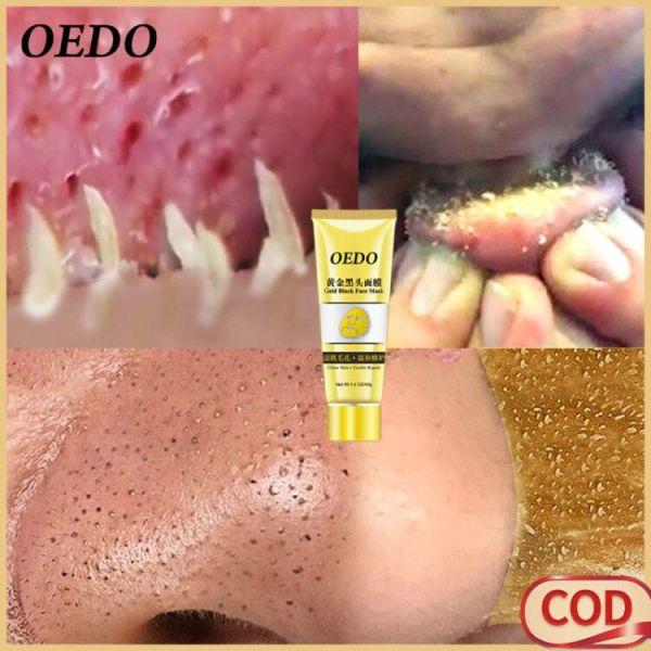 OEDO Vàng loại bỏ mụn đầu đen thu nhỏ lỗ chân lông cải thiện làn da xù xì mụn trứng cá Kem dưỡng ẩm mặt