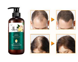 Dầu gội chiết xuất từ gừng tươi, dưỡng tóc suôn mượt 500ml - Dành cho tóc hư tổn thumbnail