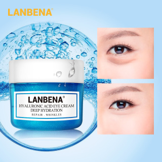 Kem mắt LANBENA 20g chiết xuất ốc sên chứa axit Hyaluronic loại bỏ quầng thâm xoá nếp nhăn tái tạo da - INTL thumbnail