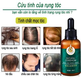 Ginger King Shouwu -tươi mát chống dầu gốc tóc vững chắc và tóc khỏe mạnh sửa chữa hư hỏngNourishing Hair Root Shampoo Essential Oil Soap Mild Black Plant Soap thumbnail
