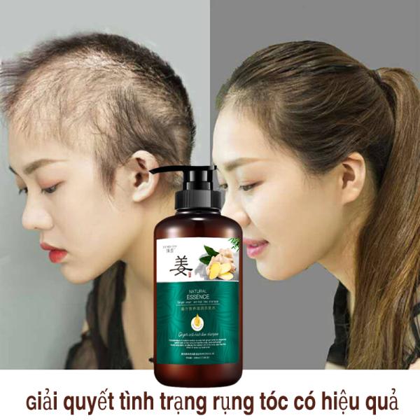 Dầu gội gừng, chống rụng tóc,làm dày tóc ,kiểm soát dầu và giảm ngứa,dầu gội ngăn rụng tóc,dầu gội thảo dược thiên nhiên giá rẻ