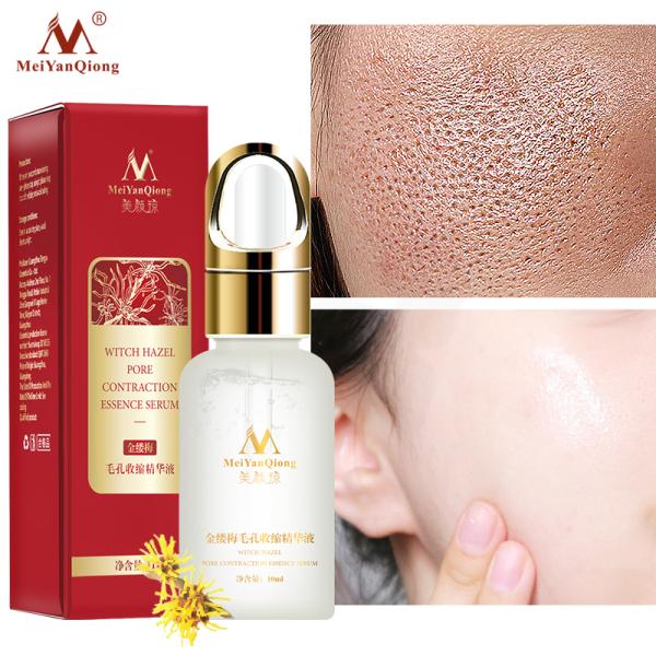 MeiYanQiong Tinh chất serum se khít lỗ chân lông sáng bật tông ngừa mụn kháng viêm