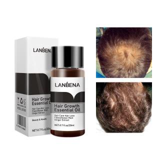 Dung dịch tóc ,Dầu gội tăng trưởng tóc nhanh, dầu thiết yếu mạnh mẽ ,chất lỏng ngăn ngừa rụng tóc, chăm sóc tóc hair serum Hair growth oil shampoo fast powerful essential oil liquid prevention hair loss care thumbnail