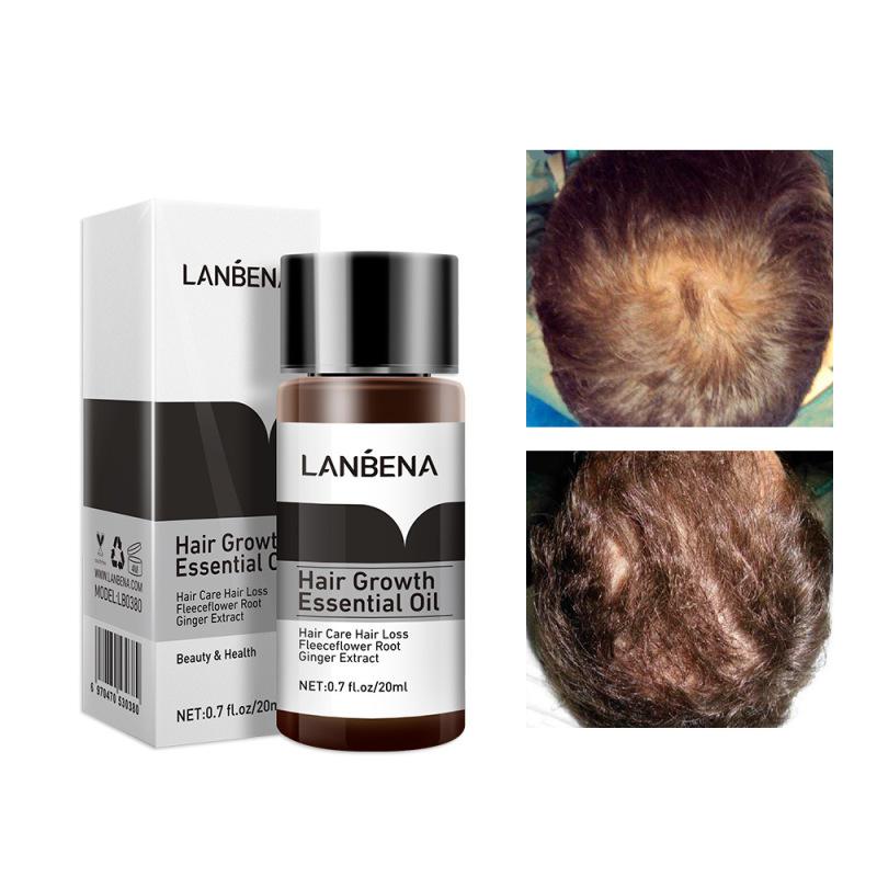 Tinh Chất Kích Thích Mọc Tóc Dưỡng Tóc Chuyên Sâu Mọc Nhanh Giảm Gãy Rụng Lanbena Hair Growth Oil 20Ml nhập khẩu