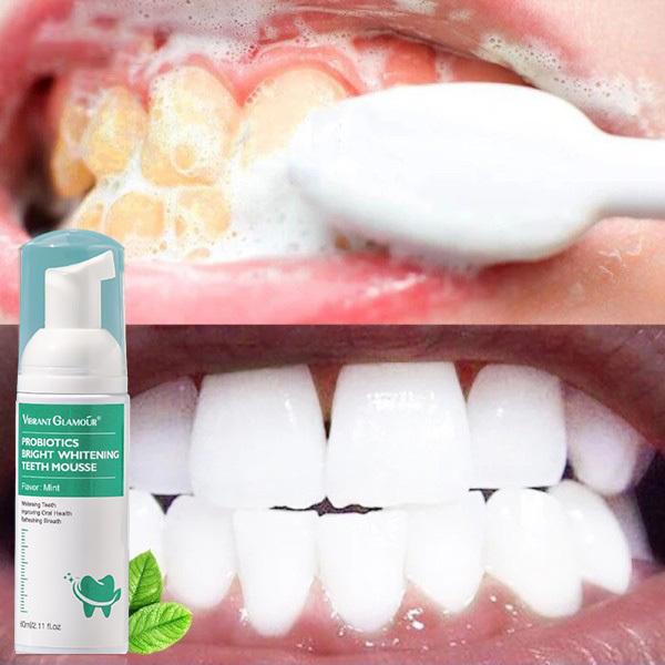 Chất làm trắng răng để bảo vệ men răng- chăm sóc răng- chất lượng răng- trị hôi miệng nhanh chóng- sau khi sử dụng hiệu quả nhanh chóng, Bọt Trắng Răng, Làm Sạch Răng, Khử Mùi Hôi Miệng, Làm Trắng Răng 60ml