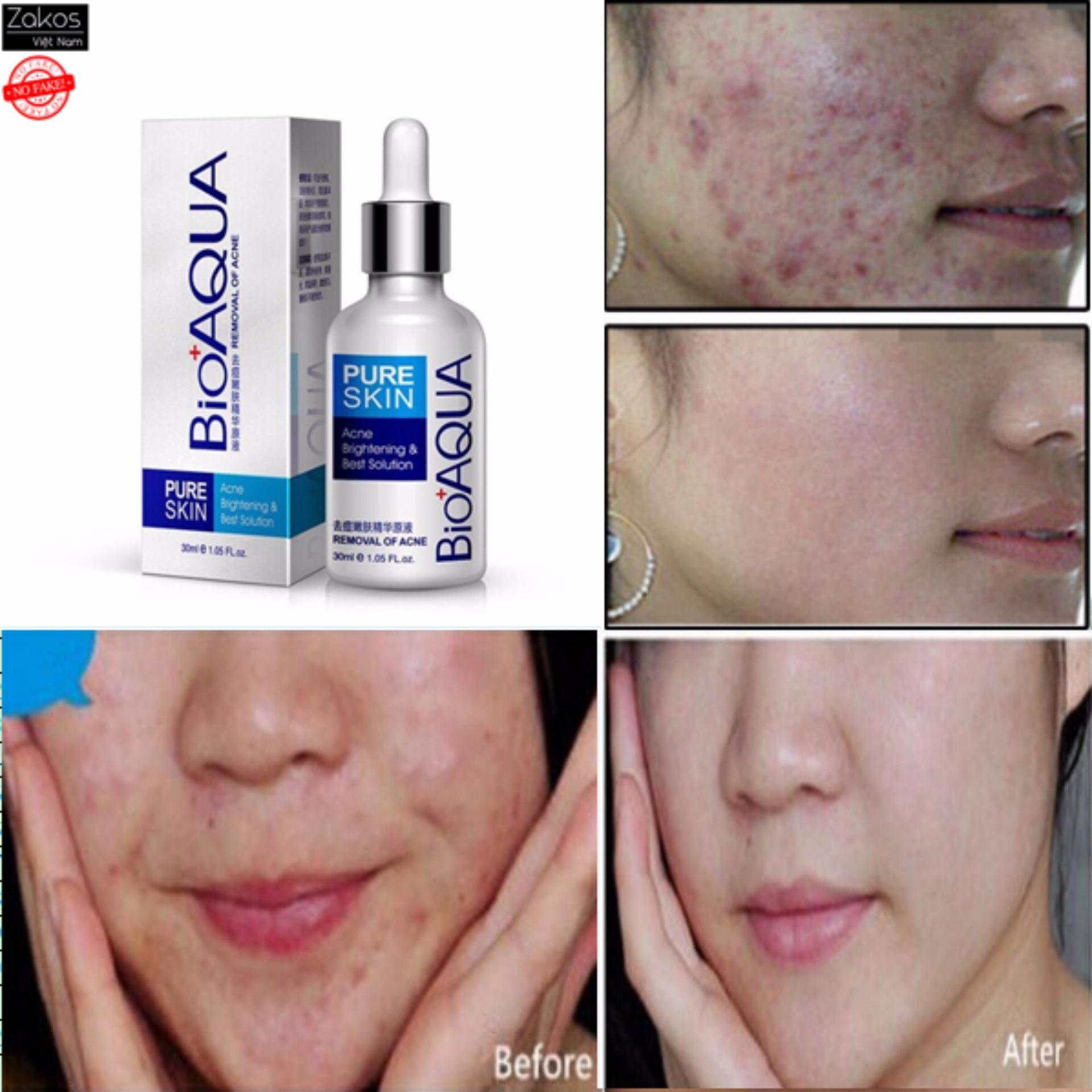 Hình ảnh Serum trị mụn làm mờ sẹo và dưỡng da BioAQua 30ml - P.R.C