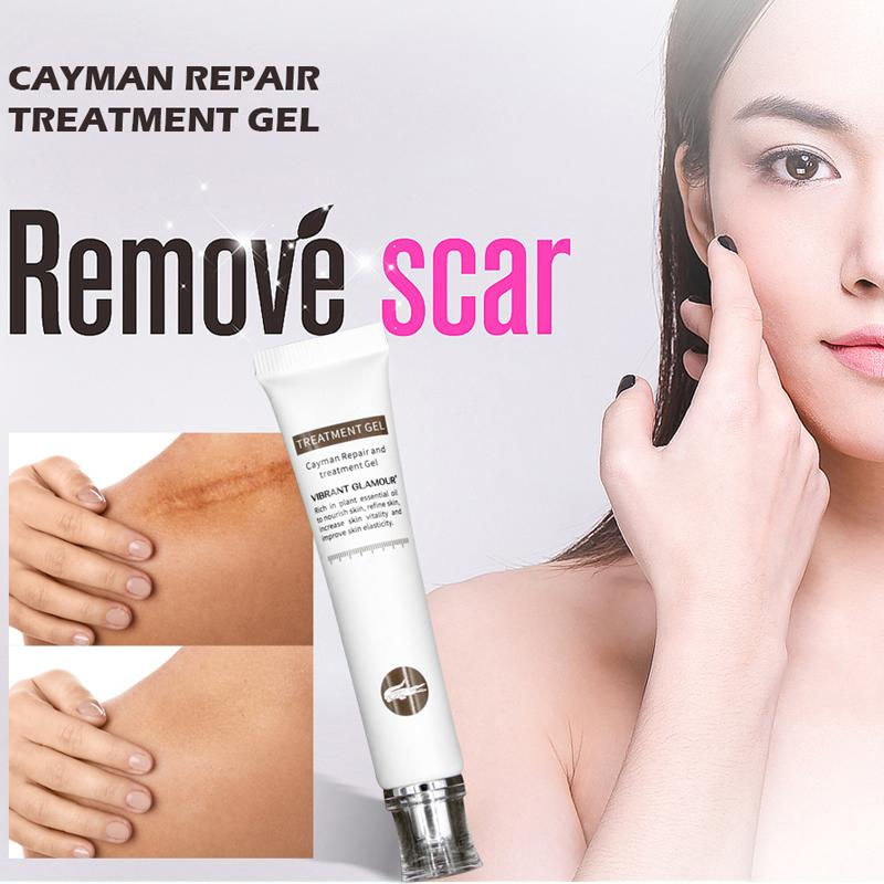 VG Scar Remover Acne Cream Scars Repair Stretch Marks Pregnancy Scars Scalded Surgery Scar Anti-Aging Moisturizing