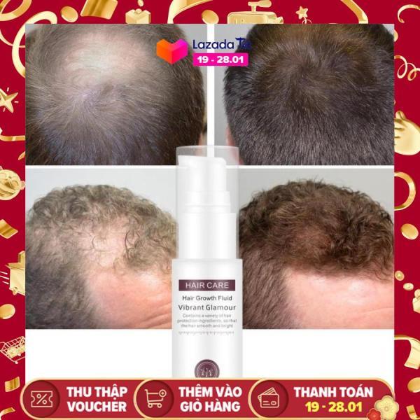 [HCM]Tinh Chất Mọc Tóc Tăng Trưởng Tóc Phục Hồi Tóc Hư Tổn Kích Mọc Tóc Làm Phồng Tóc  Sử Dụng Được Cho Nam Và Nữ