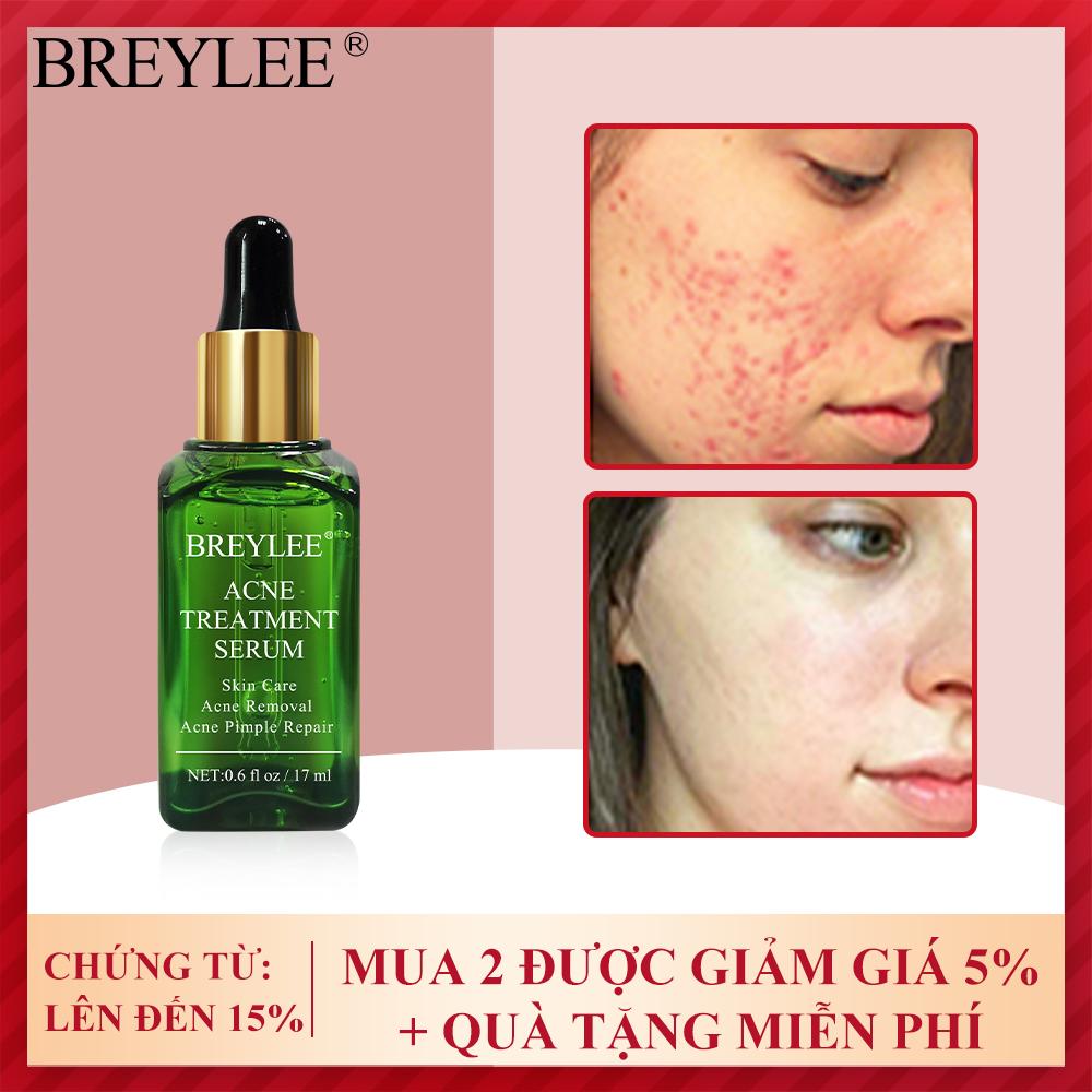 BREYLEE Facial Serum loại bỏ mụn Sản phẩm chăm sóc da Tinh chất chăm sóc da mặt Acne Treatmemt Serum for face Women Men Beauty Skincare 17ML