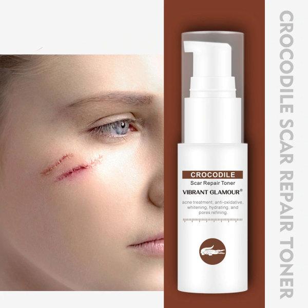 Vibrant Glamour Serum Phục Hồi Da Sẹo Rỗ Làm Mờ Vết Thâm Loại Bỏ Sẹo Kiềm Dầu Vg Skin Care Scar Treatment Repair Toner Serum nhập khẩu