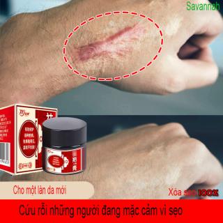 Kem xoá sẹo 30g, làm mờ bỏng,sẹo mụn,trầy xước, mờ thâm mụn,mờ thâm, phục hồi da thumbnail