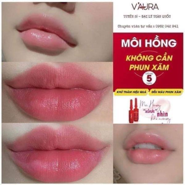 [Mua 1 cấy môi tặng 1 Kích môi + 1 Lột mụn 75k] Khử thâm môi, làm hồng môi, thay phun xăm cao cấp