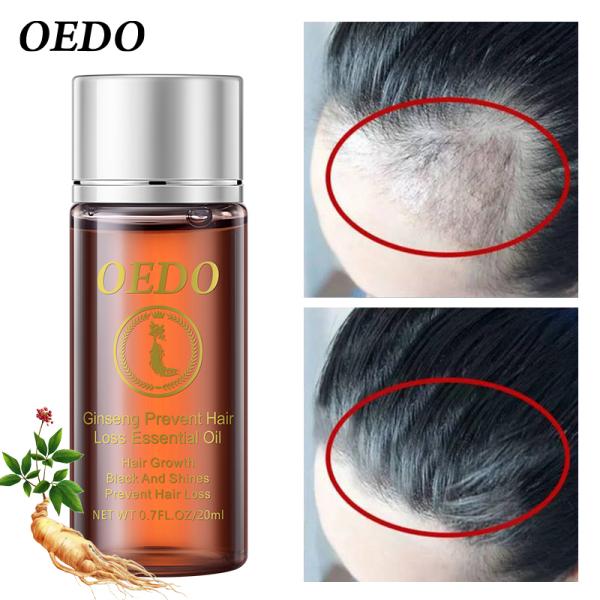 OEDO Tinh chất mọc tóc ngăn rụng tóc, bóng dầu, không mùi chiết xuất nhân sâm Hàn Quốc tốt nhất
