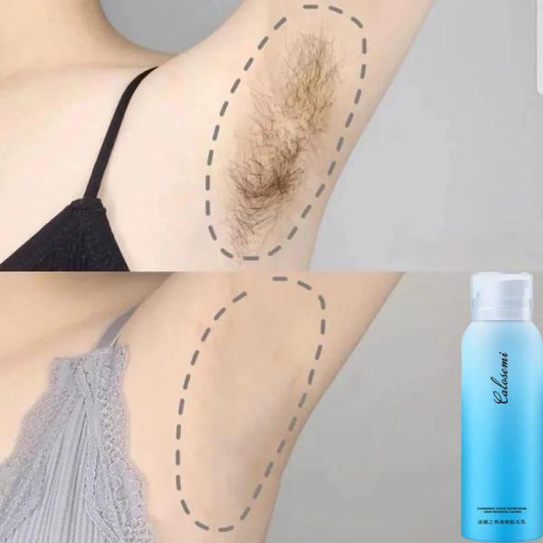 Kem tẩy lông tẩy lông sạch vĩnh viễn Sáp Tẩy Lông, Wax Tẩy lông, vùng chân, tay, nách và bikini, tẩy sạch cả lông cứng nhất dành cả nam và nữ(Mua hai giao hàng miễn phí)