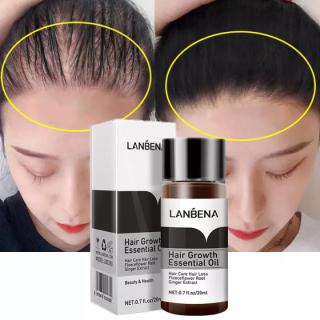Tinh Chất Kích Thích Mọc Tóc Dưỡng Tóc Chuyên Sâu Mọc Nhanh Giảm Gãy Rụng Lanbena Hair Growth Oil 20Ml thumbnail
