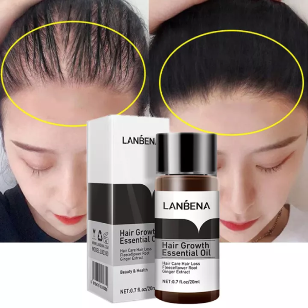 Tinh Chất Kích Thích Mọc Tóc Dưỡng Tóc Chuyên Sâu Mọc Nhanh Giảm Gãy Rụng Lanbena Hair Growth Oil 20Ml cao cấp