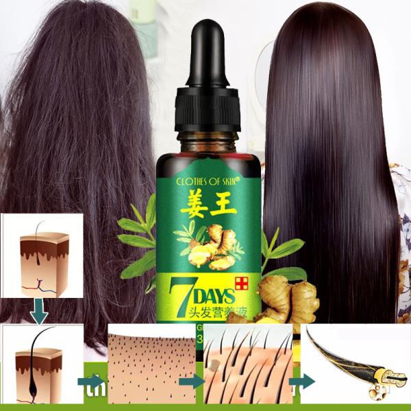Tinh chất Gừng 7Days chống Hói, tăng trưởng tóc, dưỡng tóc từ 100% với tinh chất kết hợp các Thảo dược tư nhiên Atin Store giá rẻ