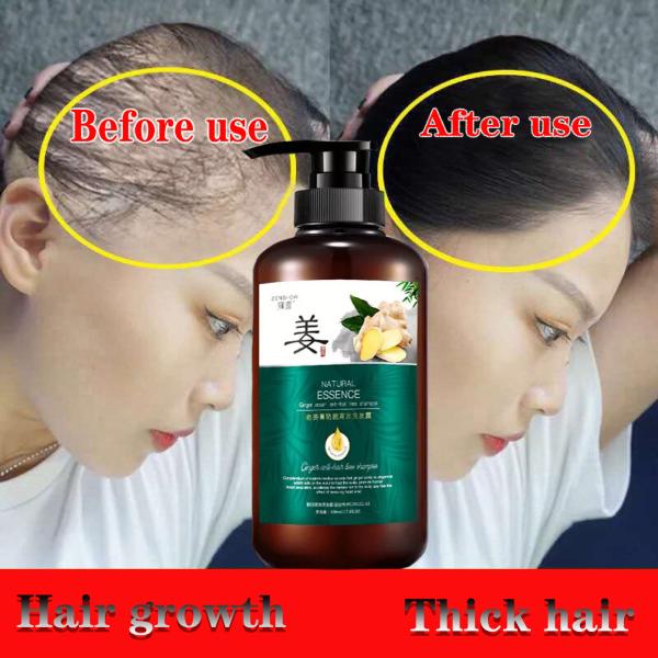 Tinh chất tăng tốc độ mọc tóc và dưỡng tóc 500ml tinh chất phục hồi tóc hư tổn dầu xả dưỡng ẩm tính chất rụng tóc tinh chất nuôi dưỡng và thúc đẩy mọc tóc giá rẻ