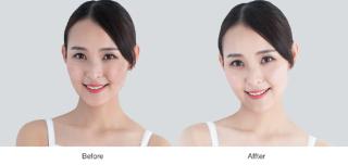 Viên uống trắng da chống lão hóa Sakura L-Glutathione Reduced 4