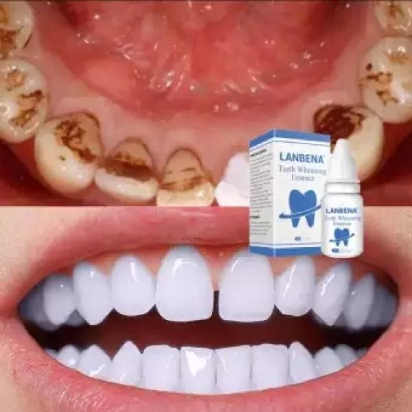 LANBENA TRẮNG RĂNG Teeth Clean Spot Cleaning LÀM SẠCH RĂNG Teeth Whitening TRẮNG RĂNG Teeth White Intensive Whitening Treatment giá rẻ