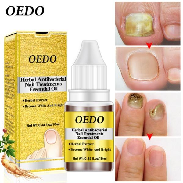 OEDO Thảo Dược Điều trị móng tay kháng khuẩn tinh dầu chiết xuất thảo dược Nấm móng nghệ thuật dụng cụ sửa chữa chăm sóc móng chân cải thiện nhiễm trùng cao cấp