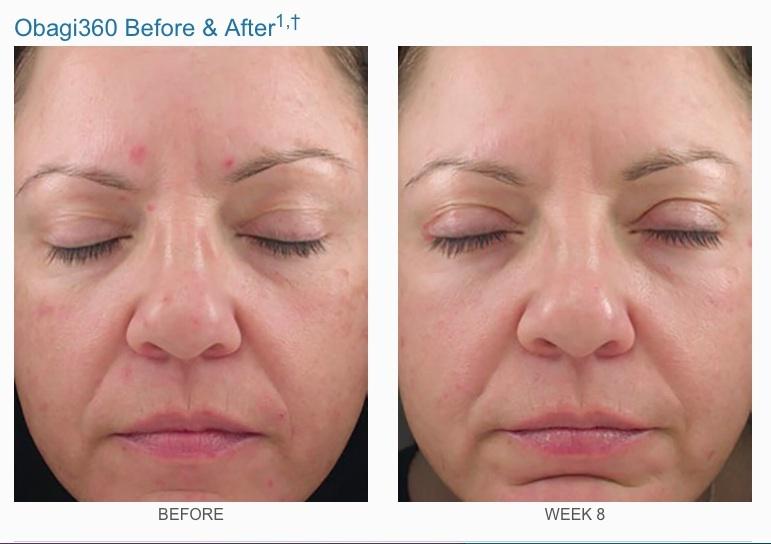Retinol 1.0 ( 28g ): Mua bán trực tuyến Dụng cụ chăm sóc da mặt ...