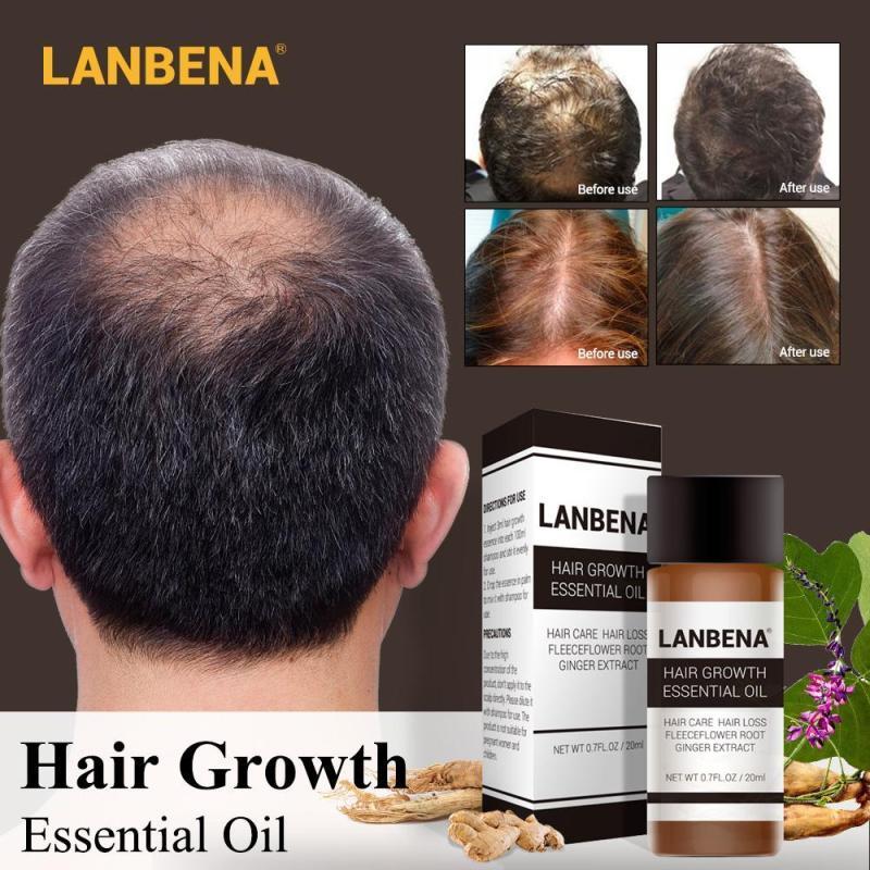hair serum Hair growth oil shampoo fast powerful essential oil treatment liquid prevention hair loss care