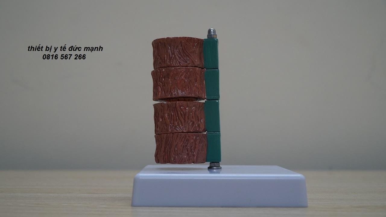 Mô hình giải phẫu động mạch vành và bệnh lý