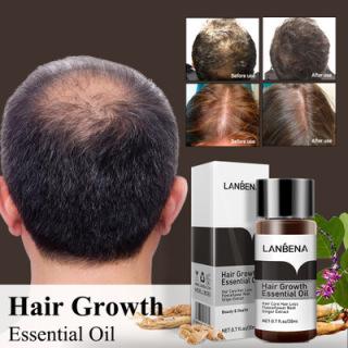 Lanbena Tinh Dầu Kích Thích Mọc Tóc Dầu Mọc Tóc Dưỡng Tóc Dài Mượt Chống Gãy Rụng Hair Grower Hair Care thumbnail