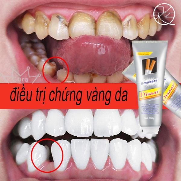 Kem Đánh Răng Tẩy Ố Vàng - Mẫu mới.  Kem đánh răng tẩy vết ố do hút thuốc lá, loại bỏ vết ố trên răng, trị hôi miệng, làm sáng răng, kem đánh răng loại bỏ vết ố bảo vệ răng