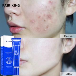 FAIR KING Remova Anti Acne Whitening Face Cream Deep Cleaning Acne Scar Shrink Pores Treatment Facial Skin Care Cream Blackhead Repair thumbnail