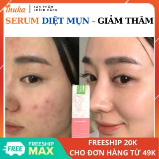 Serum dưỡng da, mờ thâm mụn Inuka. Serum sạch mụn, phục hồi da có thể thay thế máy hút mụn, gel lột mụn, serum collagen x3, lột mụn đầu đen, toner cho da dầu mụn, lột mụn, miếng dán mụn, ngừa mụn tái tạo da (10ml) inuka.store thumbnail
